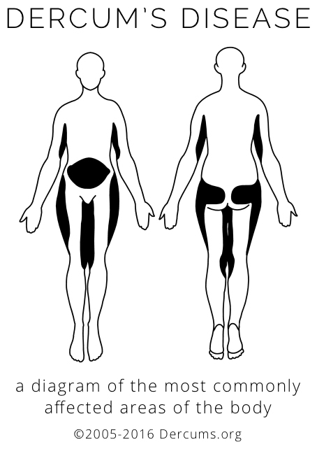 A diagram of the areas of the body most commonly affected by Dercum's Disease - the upper arms, thighs, and distinctive shapes on the abdomen, buttocks, and hips.